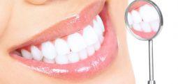 7 ushqimet që ju falin bardhësi dhëmbëve