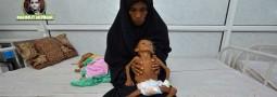 Müslümanlar için vicdan testi: Yemen