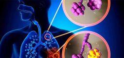 Одбележување на Светскиот ден на борба против туберкулозата
