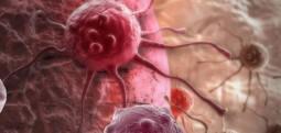 Historia e burrit që mundi kancerin me një diete të thjeshtë e të shëndetshme