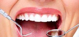 Sydney Üniversitesi'nden araştırma: Diş çürükleri durdurulabilir