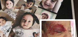 Kafasındaki tümör büyüyor ama Avşin bebek hâlâ hapiste!