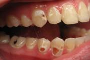 Diş çürümesi tarihe karışıyor