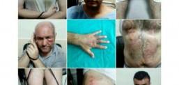 Извештај на меѓународната организација АЅТ: Продолжува насилството врз затворениците во Турција