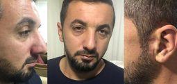 İzmir'de kaçırılan Adem Özdaman, eli yüzü kanlı şekilde evinin önüne bırakıldı