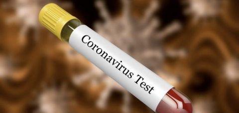 Во земјава нема заболени од коронавирус