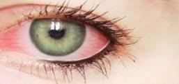 Virüsün yeni bir belirtisi daha çıktı: Pembe göz!