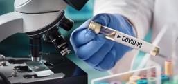 53 raste të reja me coronavirus në Maqedoni
