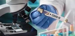Mbi 60 raste të reja me Kovid-19, një i vdekur