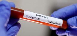 Teste për diagnostikim të shpejtë për prani të virusit Sars-Cov-2