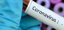 Gjatë 24 orëve te fundit nga Covid-19, kane vdekur tre persona dhe 168 raste të reja